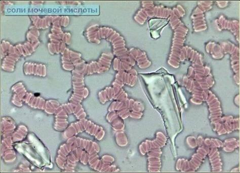 Соли мочевой кислоты на гемосканировании